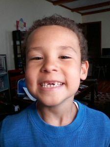 Miles teeth
